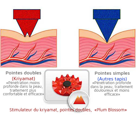 acu^ression plum blossom